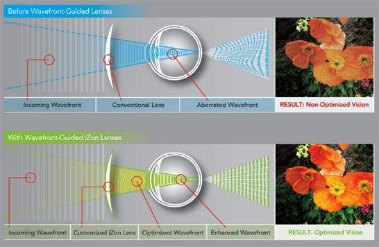 Image result for wavefront lenses