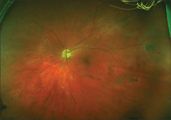 Which Produce The Optomap Retinal Image This Nonmydriatic Option Captures An Of Retina In Less Than A Second Without Any Discomfort To