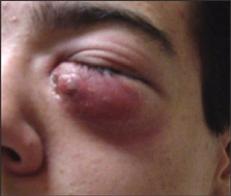 Optometric Management Mrsa And The Eye
