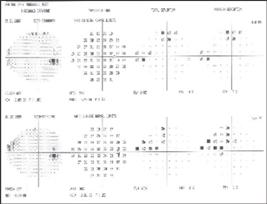 Optometric Management -