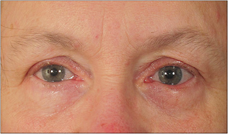 Allergic conjunctivitis is a common cause of epiphora. Diagnosis is via elimination.