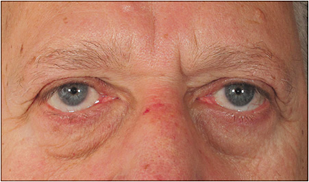Lower lid laxity. Presence of inferior sclera showing an upward slope of lower eyelid confirms diagnosis. 