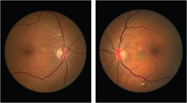 "A 65 year-old presented complaining of a ""constant gray spot."" Note the arteriovenous nicking OU and small, flat choroidal nevus OS."