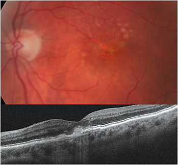 89-year-old female with wet AMD OS. CNV was observed via SD-OCT.