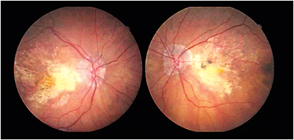 79-year-old female with advanced GA OU and severe vision loss OD 20/400, OS 20/400.