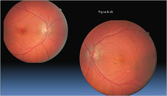 Figure 1a and 1b: Dilated fundus exam showing pigmentary changes and drusen OU.