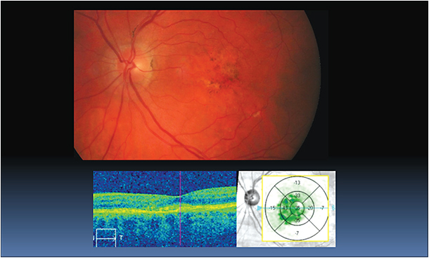 Figure 3a and 3b: Three-month follow up after bevacizumab (Avastin, Genentech) treatment. Retinal topography shows thinning; SDOCT shows hyper reflective area within the RPE, with no associated fluid. Dilated fundus shows pigmentary changes and decrease of retinal thickening, without signs of hemorrhages.