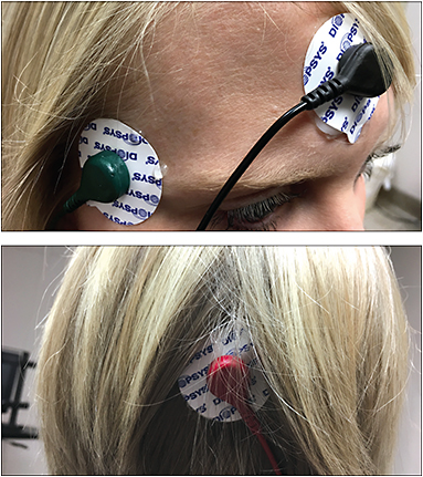 Electrode placement for VEP, forehead, temple and back of the scalp.