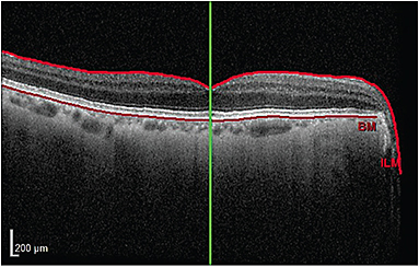 A patient who has primary open angle glaucoma.