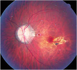 Myopic patient with macular hemorrhage due to CNV,  lacquer cracks, and a Fuchs' spot.