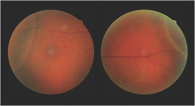 Does the patient have acquired retinoschisis or retinal detachment?