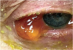 Allergic reaction to a prescribed topical glaucoma medication causing severe conjunctival edema with conjunctival prolapse over the lid margin.