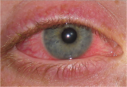 Note the circumlimbal injection and limbal edema in this CLARE patient.