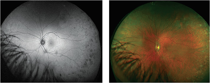 Figure 5. Ultra-widefield autofluorescence (optomap af) revealed darker-than-normal tissue.