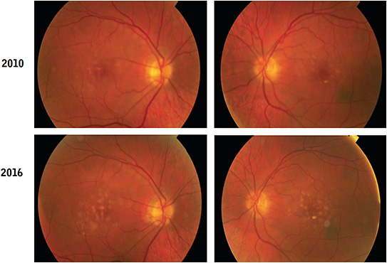 Figure 6. A 74-year-old male was diagnosed with moderate AMD in 2010 and was advised to take an AREDS nutritional supplement, which he neglected to do. He did not return for an examination until 5 years later (2016). At that time, his visual acuity was 20/30 in each eye.