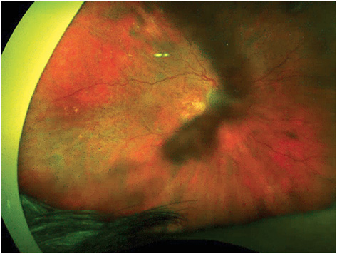 Figure 7. An 82-year-old female presented with geographic atrophy that had caused severe vision loss in both eyes, and further acute vision loss in the right eye as seen in this optomap image.