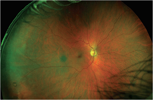 Figure 2. Ultra-widefield optomap revealed degeneration in the retinal periphery.