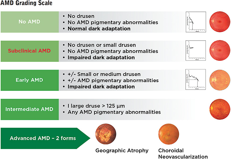 Figure 3. Subclinical AMD can be added to the familiar grading scale.