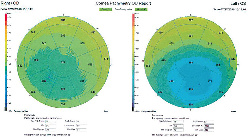 Corneal pachymetry can reveal specific problem areas of corneal thinning.