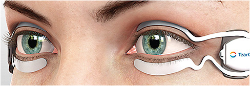 TearCare (Sight Sciences) is a thermal treatment for DED. 