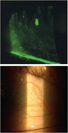 Utilize the two-dye system (lissamine green, top, and NaFl) to look for ocular surface irritation.