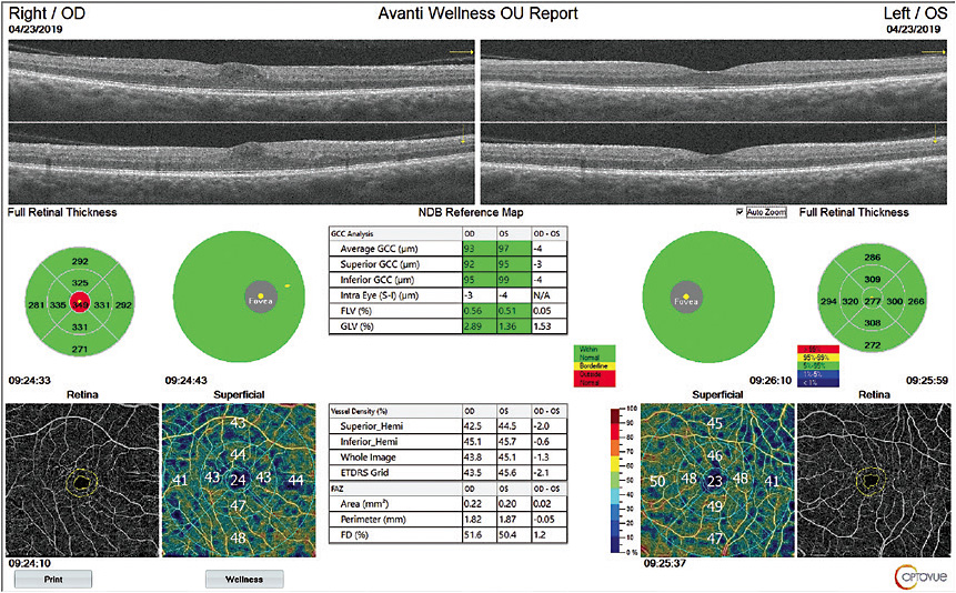 Retinal and vascular images, via AngioWellness. 