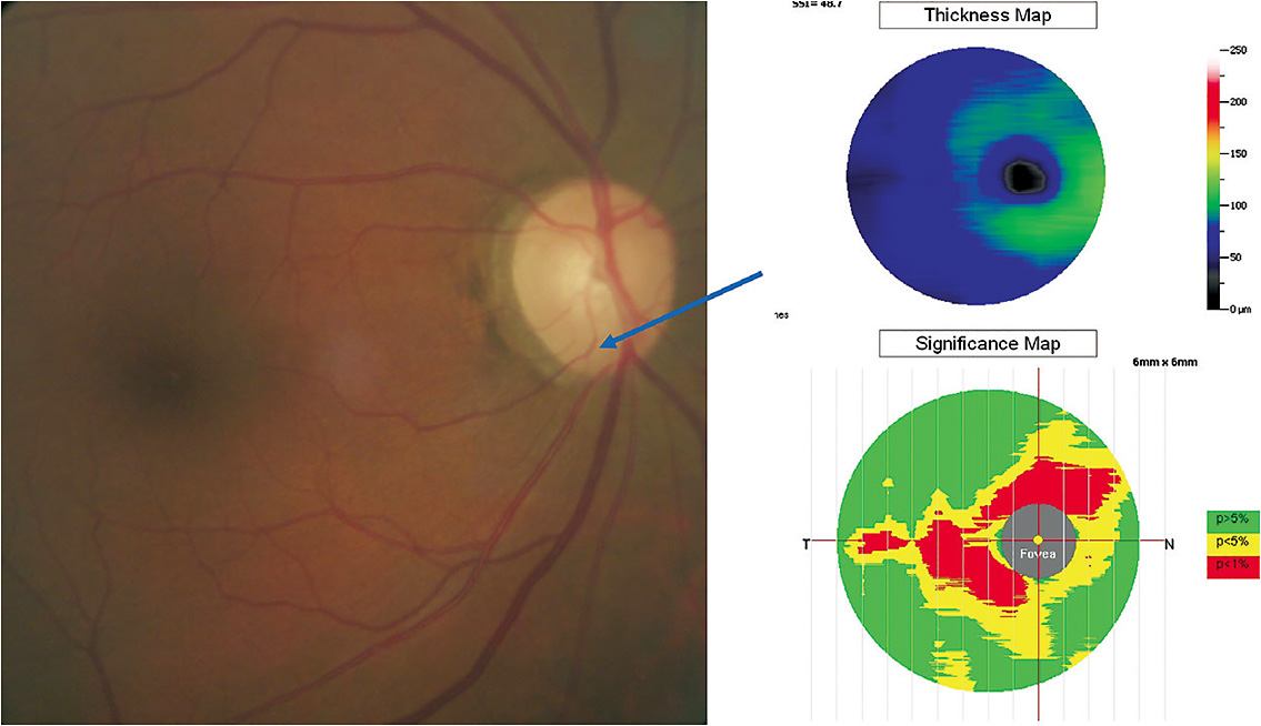 Figure 1. Right color fundus photograph with arrow indicating a vessel deflection describing a thinner inferior rim than had been documented previously. Right panel showing absolute macular nerve fiber layer thinning (thickness map) based on the color scale to the right and relative thinning based on the reference database (less than 1% of those with such a thin value). 