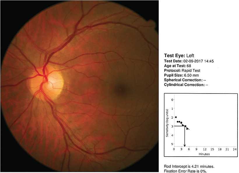 Figure 2. Left color fundus photograph showing absence of drusen, or pigmentary abnormalities. Right panel: rod-mediated dark adaptation results indicating normal dark adaptation. If the rod-intercept time had been greater than 6.1 minutes, further testing would be indicated along with closer scrutiny. 