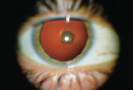 steroid-induced posterior subcapsular cataracts