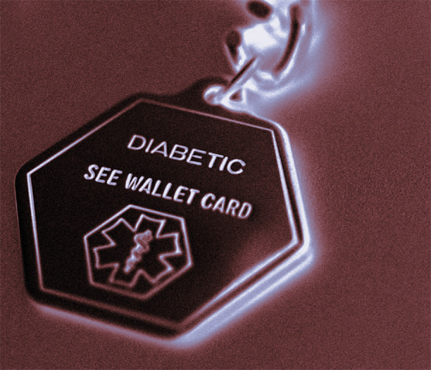 Type 2 Diabetes Unexplained Weight Loss Type 2 Diabetes