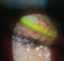 Anterior: Lash Out at Anterior Blepharitis