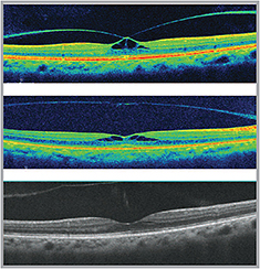 The Back: What's New in Retinal Treatments?